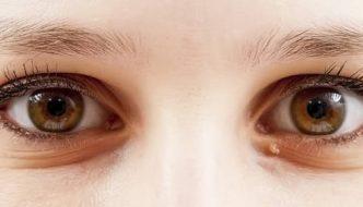 Tipos de visión: visión túnel vs visión periférica. Por qué los hombres no encontramos nada en la nevera